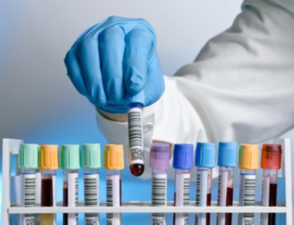 Interpretació de resultats analítics d'infermeria