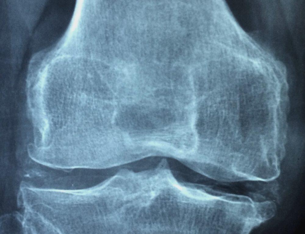 Prevenció de caigudes i lesions associades a pacients ingressats